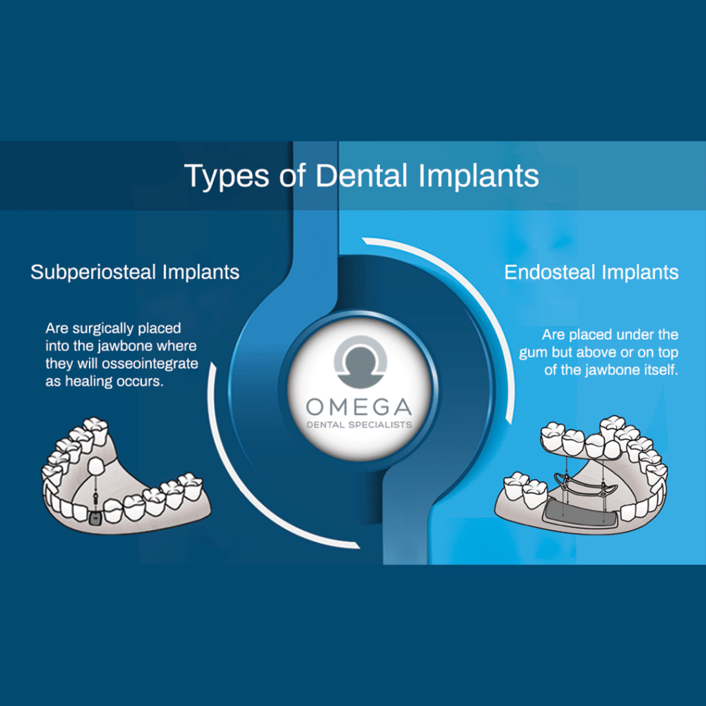 infographics-type-dental-implants-Houston-Omega-Dental