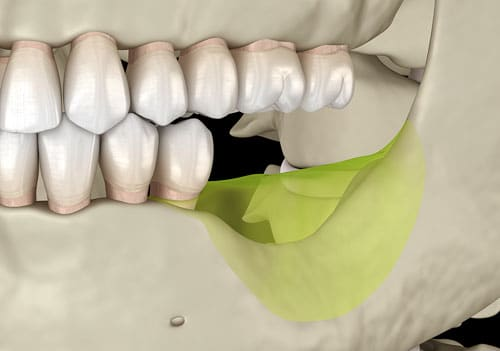 bone recession after tooth loss