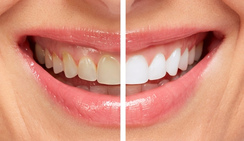 Free-Teeth-Whitening-Houston