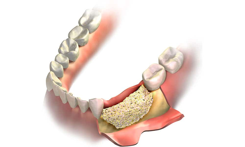 Benefits Of Dental Bone Grafting Omega Dental Houston Tx