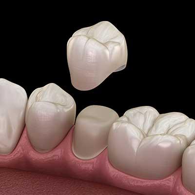 Dental-Crown-Houston