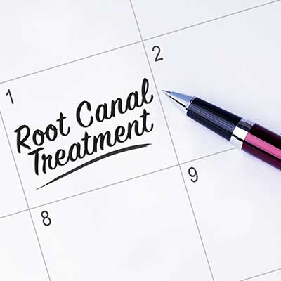 Root canal cost Houston