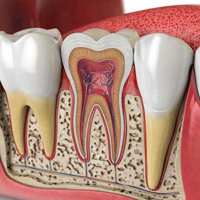 Root Canal Surgery Houston