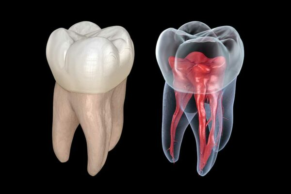 What Is The Use of CT Scan For Root Canal?