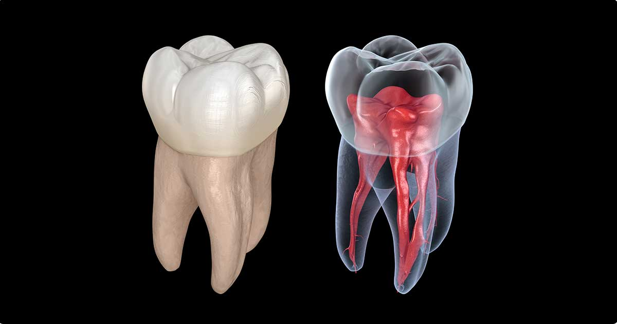What Is The Use of CT Scan For Root Canal? | Omega Dental Houston TX