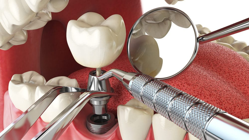 missing teeth treatment dental implants
