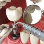 Why Is It Important to Replace Missing Teeth?