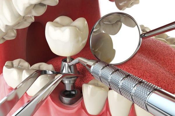 missing teeth treatment dental implants
