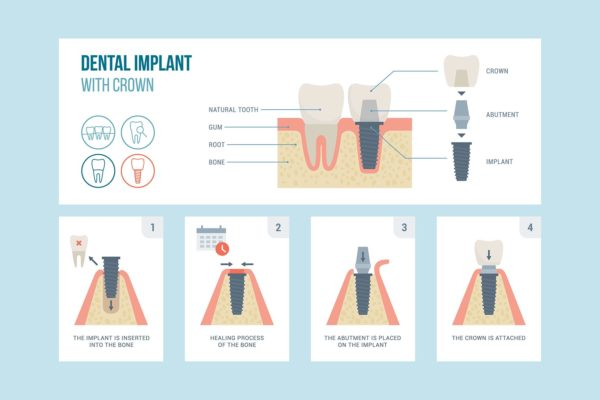 A Complete guide to Dental Implants Process and Timeline