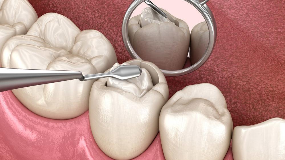 cost of dental fillings in Houston Texas